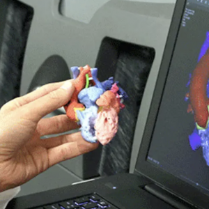 Surgeon Holding 3D Printed Heart to DICOM 3D Modeling Software